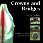 Planning and Making Crowns and Bridges, 4th Edition