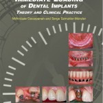 Immediate Loading of Dental Implants: Theory and Clinical Practice