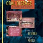 PDQ Oral Disease Diagnosis and Treatment