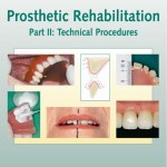 Prosthetic Rehabilitation: Technical Procedures