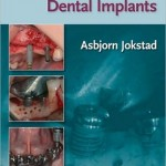 Osseointegration and Dental Implants