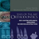 State-of-the-Art Orthodontics: Self-Ligating Appliances, Miniscrews and Second Molars Extraction
