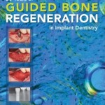 [Free] 20 Years of Guided Bone Regeneration in Implant Denistry