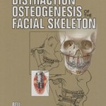 [Free] Distraction Osteogenesis of the Facial Skeleton