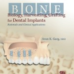 Bone Biology, Harvesting, and Grafting For Dental Implants: Rationale and Clinical Applications
