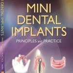 Mini Dental Implants: Principles and Practice