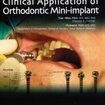 [Free] Clinical Applications of Orthodontic Mini-implants
