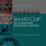 [Free] SmartClip Self-Ligating Appliance System: Concept and Biomechanics