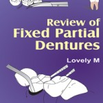 Review of Fixed Partial Dentures