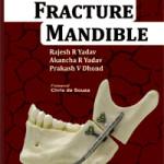 Fracture Mandible