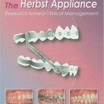 The Herbst Appliance: Research-Based Clinical Management