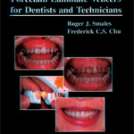 Porcelain Laminate Veneers for Dentists and Technicians