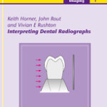 Interpreting Dental Radiographs