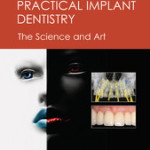 Practical Implant Dentistry: The Science and Art