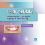 Tooth Whitening: Indications and Outcomes of Nightguard Vital Bleaching