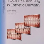 Tooth Whitening in Esthetic Dentistry: Principles and Techniques