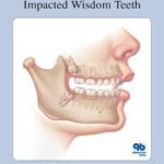 Understanding Impacted Wisdom Teeth