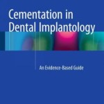 Cementation in Dental Implantology: An Evidence-Based Guide