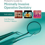 Pickard's Guide to Minimally Invasive Operative Dentistry, 10th Edition