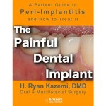 The Painful Dental Implant: Patient's Guide to Peri-Implantitis