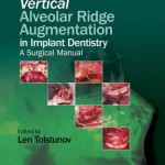 Vertical Alveolar Ridge Augmentation in Implant Dentistry : A Surgical Manual
