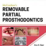 McCracken's Removable Partial Prosthodontics, 13e