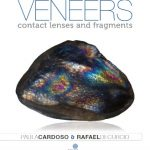 Ceramic veneers: contact lenses and fragments