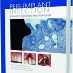 Peri-Implant Infection Etiology : Diagnosis and Treatment