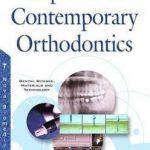Implants in Contemporary Orthodontics