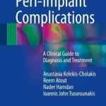 Peri-Implant Complications : A Clinical Guide to Diagnosis and Treatment