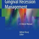 Gingival Recession Management : A Clinical Manual