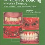 Immediate Loading in Implant Dentistry : Surgical, Prosthetic, Occlusal, and Laboratory Aspects