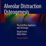 Alveolar Distraction Osteogenesis : The ArchWise Appliance and Technique