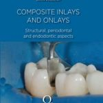 Composite Inlays and Onlays : Structural, Periodontal, and Endodontic Aspects