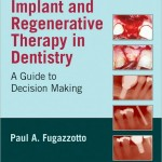 Implant and Regenerative Therapy in Dentistry: A Guide to Decision Making