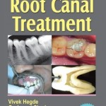 Step by Step® Root Canal Treatment