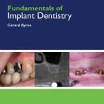 Fundamentals of Implant Dentistry
