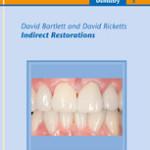 Indirect Restorations