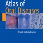 Atlas of Oral Diseases                            :A Guide for Daily Practice