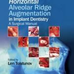 Horizontal Alveolar Ridge Augmentation in Implant Dentistry : A Surgical Manual