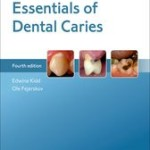Essentials of Dental Caries, 4th Edition
