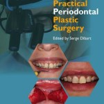 Practical Periodontal Plastic Surgery, 2nd Edition