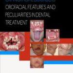 Craniofacial Disorders – Orofacial Features and Peculiarities in Dental Treatment