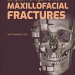 Surgical Management of Maxillofacial Fractures