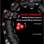 Creative Orthodontics: Blending the Damon System & TADs to manage difficult malocclusions