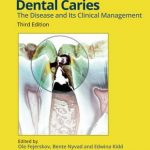 Dental Caries : The Disease and its Clinical Management 3rd Edition