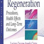 Guided Tissue Regeneration : Procedures, Health Effects & Long-Term Outcomes