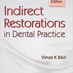 Indirect Restorations in Dental Practice