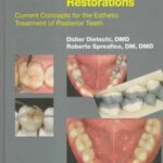 Adhesive Metal-Free Restorations : Current Concepts in the Aesthetic Treatment of Posterior Teeth